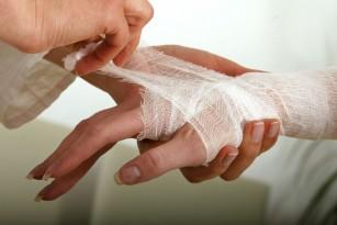 luxația articulațiilor degetelor)