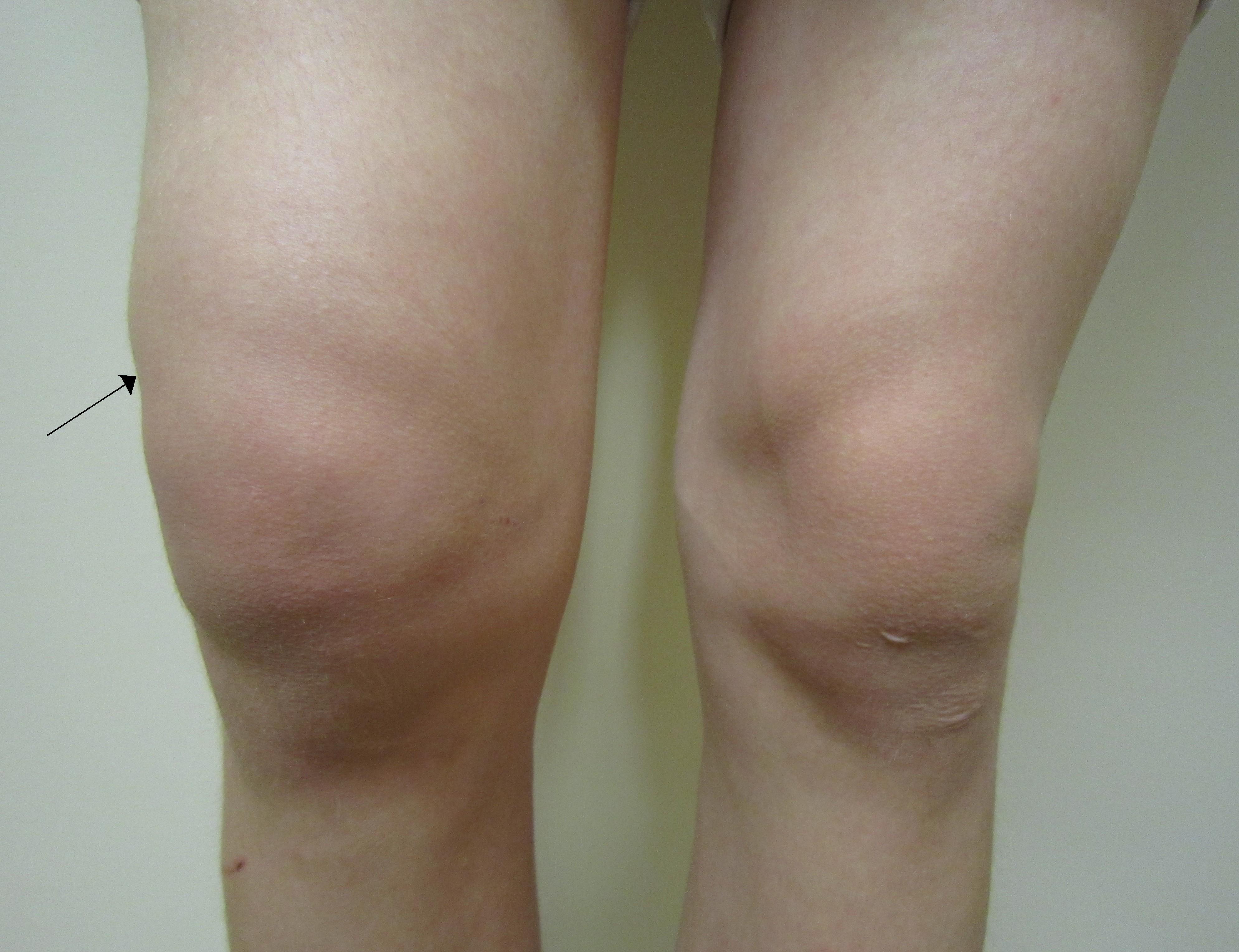 lichid sub tratamentul articulației genunchiului)