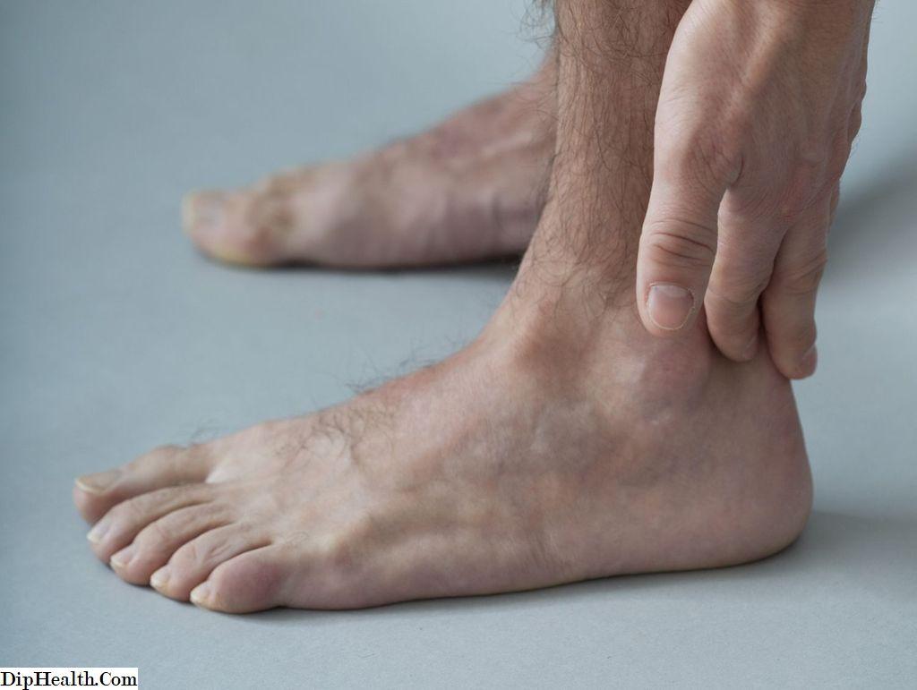 Tendonita achilei tendonice