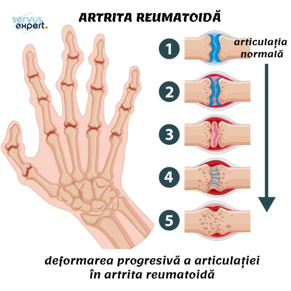 deformarea degetelor de la picioare în artrită)