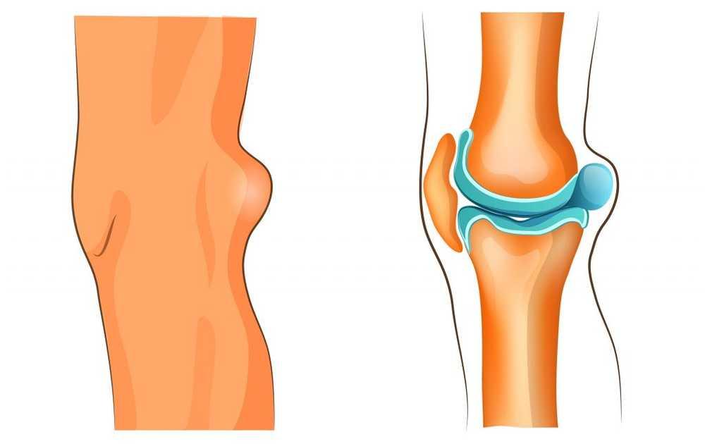 durere cu chistul genunchiului unui brutar