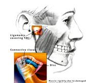 durere la înghițirea articulației temporale)