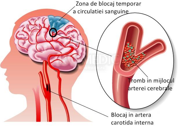 după un accident vascular cerebral  dureri articulare)