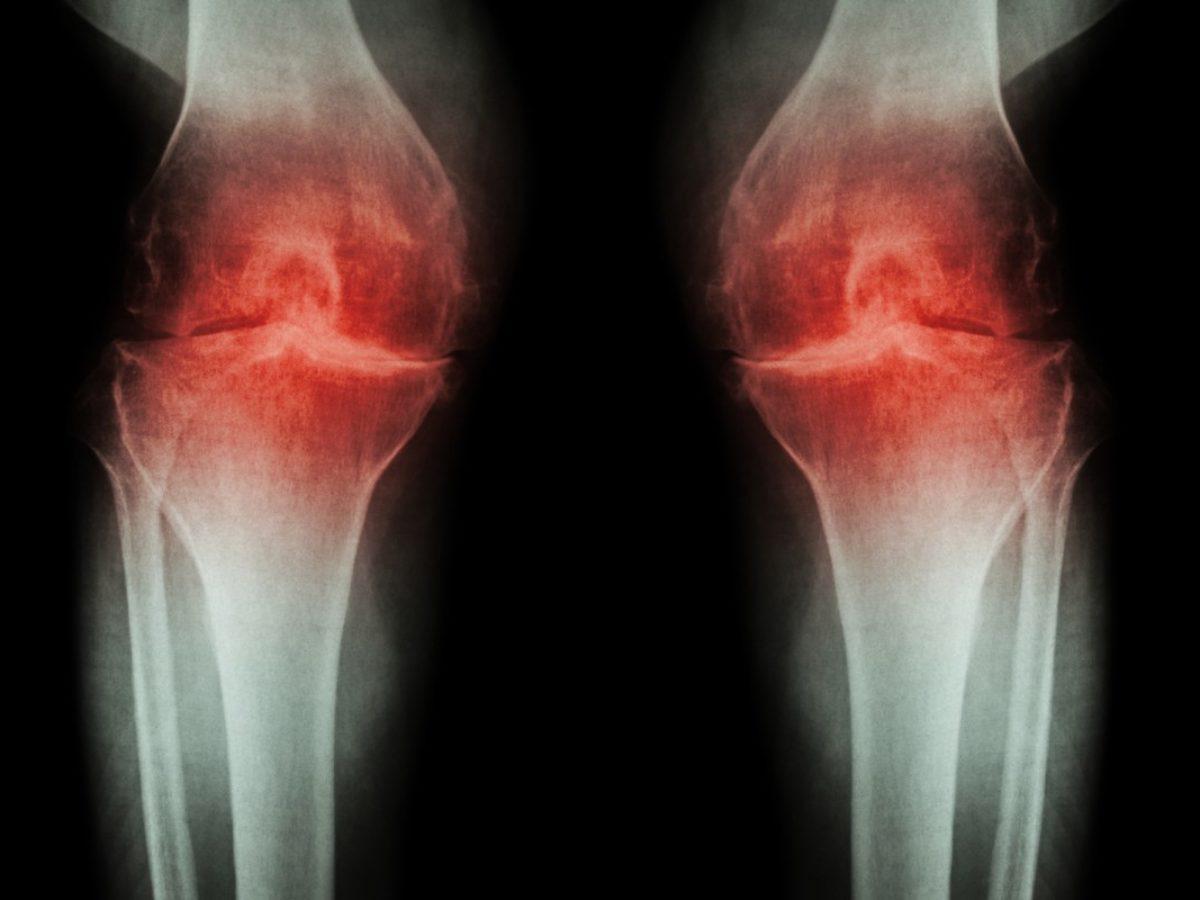 Magnetoterapie. Fizioterapie. Terapii | Clinica ImunoMedica