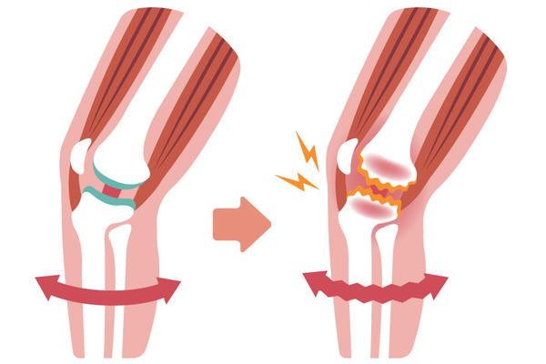 gonartroza genunchiului 2 grade istoric medical