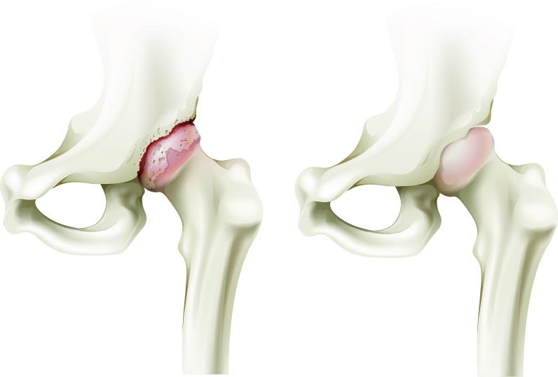eliminarea durerii la nivelul articulațiilor genunchiului și șoldului