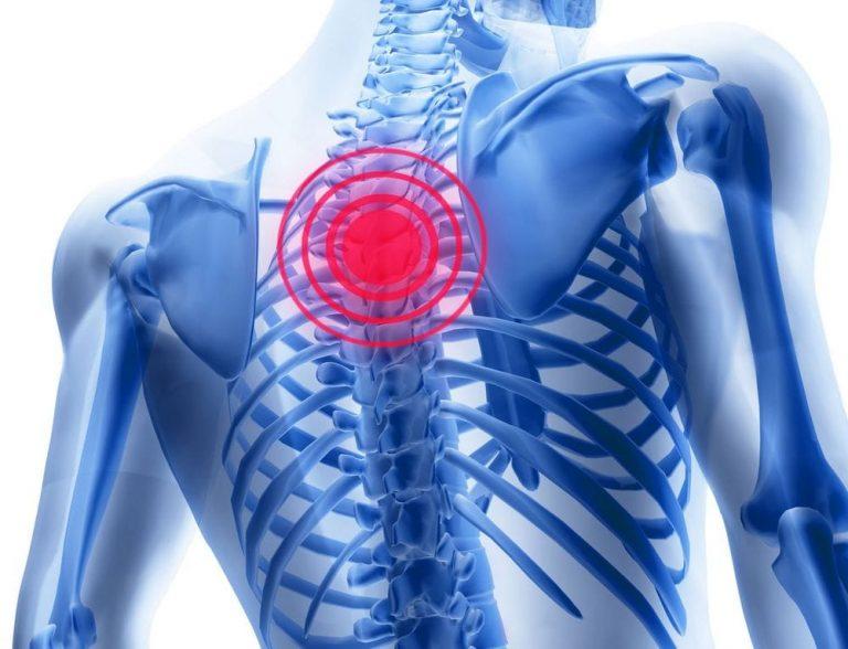 unguente pentru osteochondroza coloanei vertebrale toracice și cervicale