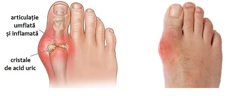 Monturile (hallux valgus): cauze, simptome si tratament