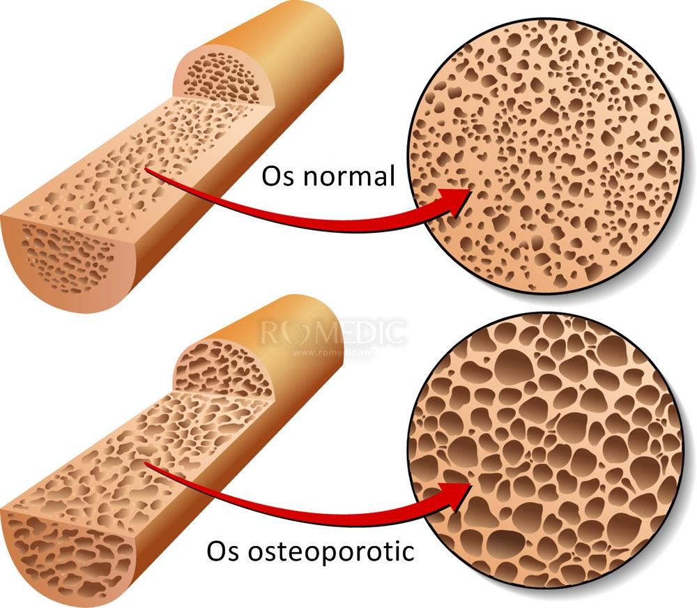 medicamente pentru osteoporoză la genunchi)