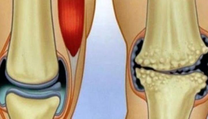 Remedii naturale care combat durerea articulara