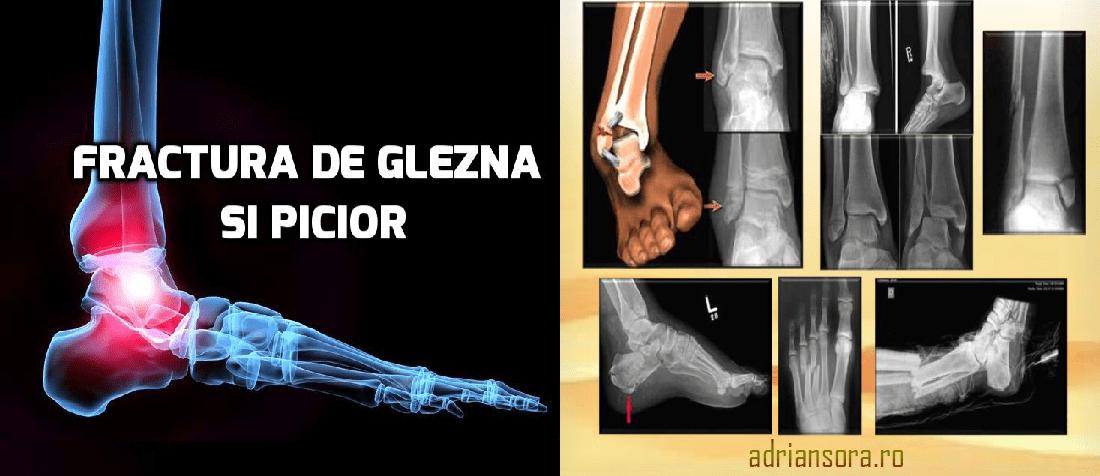 reparația articulațiilor după fractura gleznei)