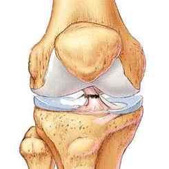 ruperea ligamentelor tratamentului și recuperării articulației genunchiului)