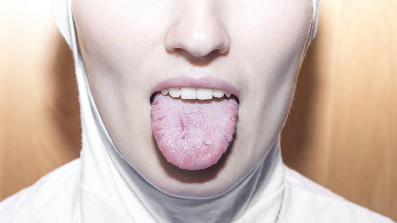 tratamentul articulațiilor de chin)