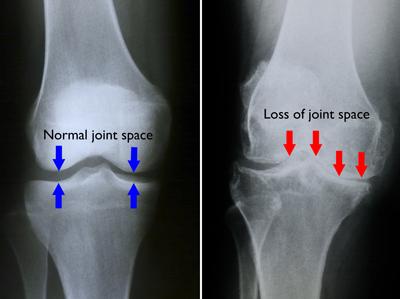 tratamentul artrozei genunchiului în stadiul inițial