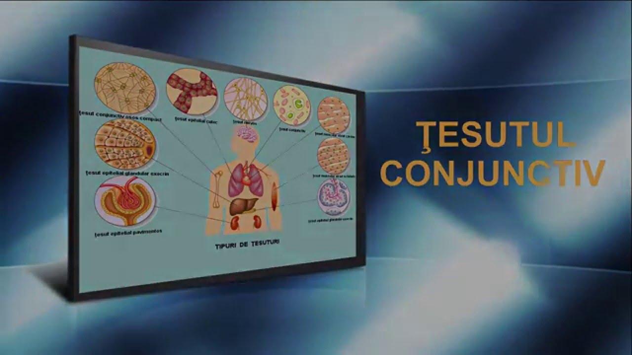 Displazie de țesut conjunctiv. Ce este displazia țesutului conjunctiv? - Ciuperca
