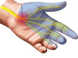 Poliartrita reumatoida - Simptomele și tratamentul artrozei carpiene