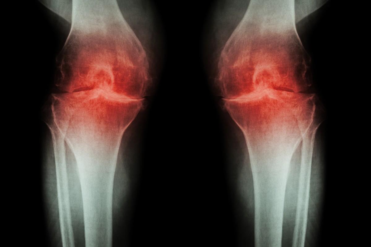 tratamentul radiologic al artrozei