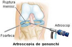 tratarea leziunilor meniscului la genunchi