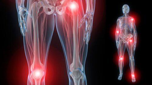 preparate de lubrifiere pentru articulații ce este artroza genunchiului din cauza ghemuitelor